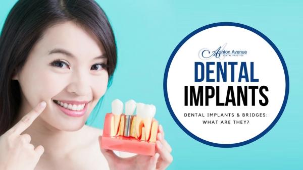 Dental Implants & Bridges